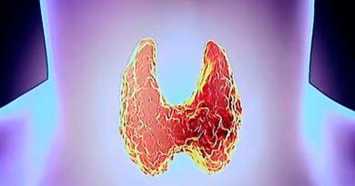 Щитовидная железа – убийца килограммов